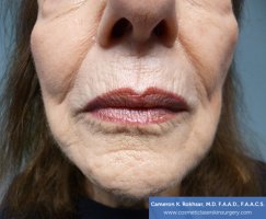 Fraxel and stretch marks - Before Treatment photo - patient 3