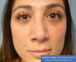 Non Surgical Nosejob - After treatment photo, female,front view, patient 13