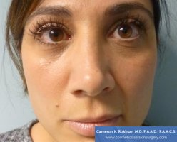 Non Surgical Nosejob - Before treatment photo, female,front view, patient 13