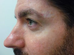 V-Beam Laser After Treatment Photo - patient 1