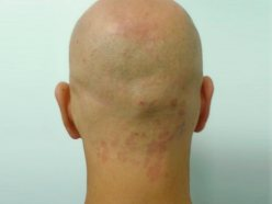 Male head, Before Birthmarks Treatment - back view, patient 2