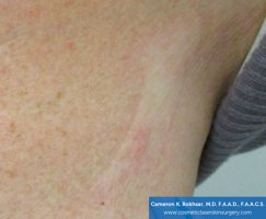 Fraxel and stretch marks - After Treatment photo - patient 2