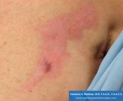 Fraxel and stretch marks - Before Treatment photo - patient 2