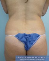 Liposuction - Before Treatment Photo, back view - female patient 4