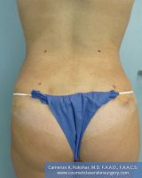 Liposuction - After Treatment Photo, back view - female patient 4