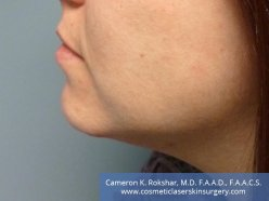 Kybella - After Treatment photo, left side view, 34 year old female with dramatic improvement of neck
