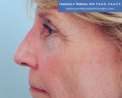 Non Surgical Nosejob - After treatment photo, female,left side view, patient 6