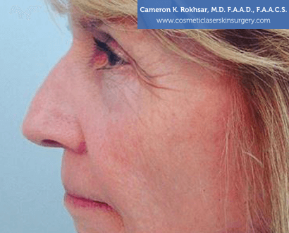 Non Surgical Nosejob - Before treatment photo, female,left side view, patient 6