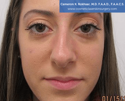 Non Surgical Nosejob - Before treatment photo, female,front view, patient 7