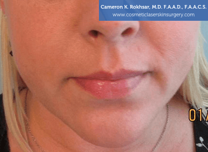 Fillers. Before Treatment photo, female - front view, patient 1