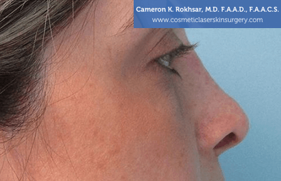 Non Surgical Nosejob - After treatment photo, female,right side view, patient 5