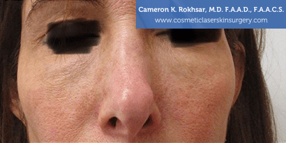 Non Surgical Nosejob - After treatment photo, female,front view, patient 2