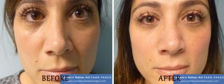 Non Surgical Nose Job: Before and After Treatment Photo - patient 4