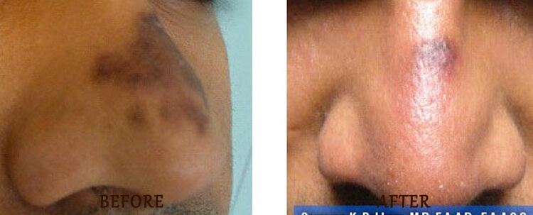 Fraxel: Before and After Treatment Photo - patient 10