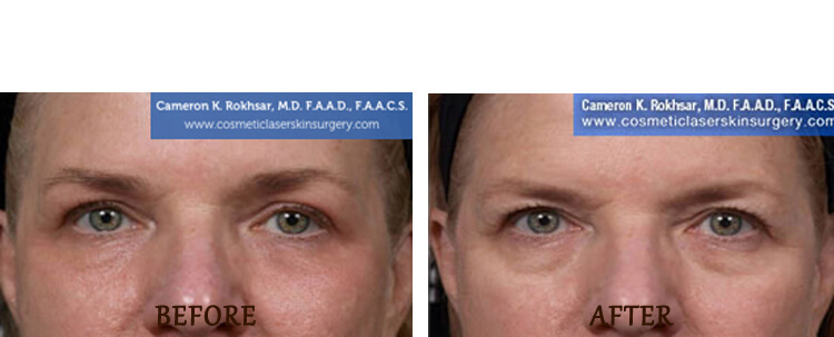 Fraxel: Before and After Treatment Photo - patient 12