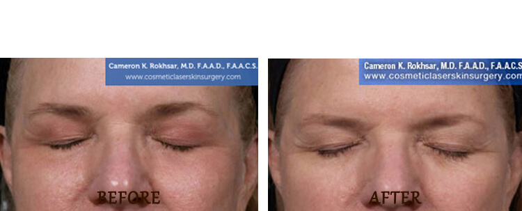 Fraxel: Before and After Treatment Photo - patient 13