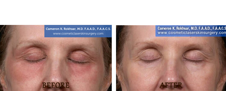 Fraxel: Before and After Treatment Photo - patient 15
