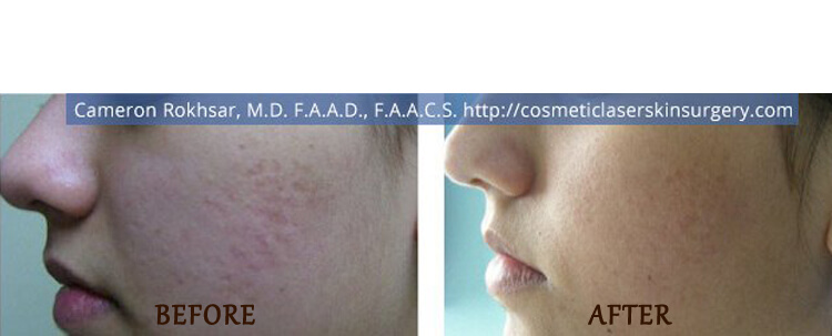 Fraxel: Before and After Treatment Photo - patient 8