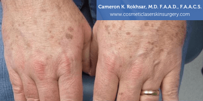 Woman's hands, Before Age/Brown Spots Treatment - patient 1