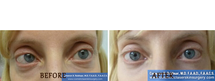 Non Surgical Eyelift: Before and After Treatment Photo - patient 2