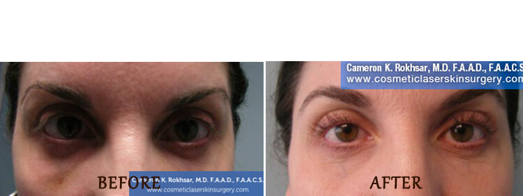 Non Surgical Eyelift: Before and After Treatment Photo - patient 3