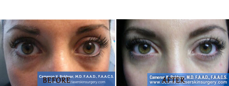 Non Surgical Eyelift: Before and After Treatment Photo - patient 4