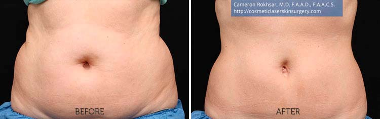 CoolSculpting Results: Before and After Treatment Photo - patient 3