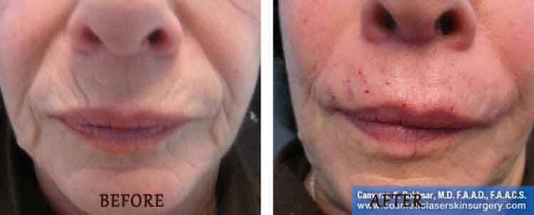 Juvederm: Before and After Treatment Photo - patient 2