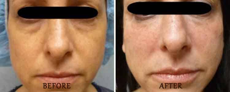 Bellafill: Before and After Treatment Photo - patient 4