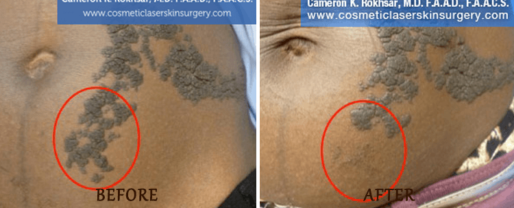Birth Mark Removal: Before and After Treatment Photo - patient 4