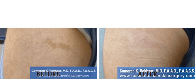 Birth Mark Removal: Before and After Treatment Photo - patient 5