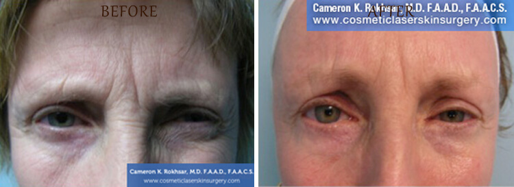 Botox: Before and After Treatment Photo - patient 1