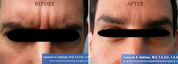 Botox: Before and After Treatment Photo - patient 2