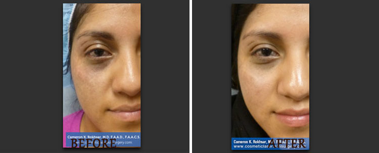Brown Spots Treatments: Before and After Treatment Photo - patient 1