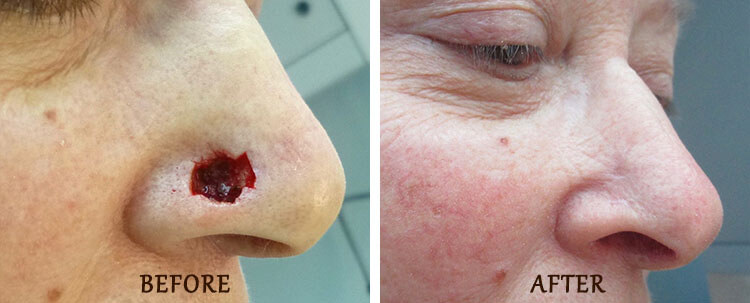 Mohs Surgery: Before and After Treatment Photo - patient 1
