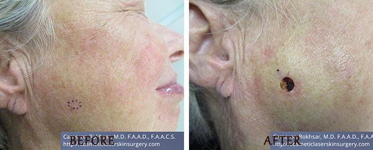 Mohs Surgery: Before and After Treatment Photo - patient 2