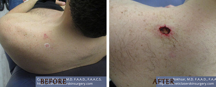 Mohs Surgery: Before and After Treatment Photo - patient 3
