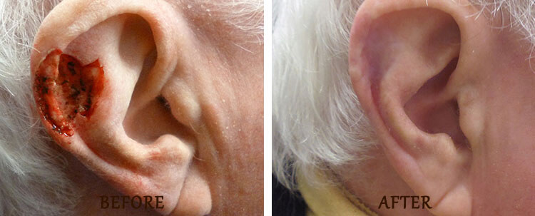 Mohs Surgery: Before and After Treatment Photo - patient 5