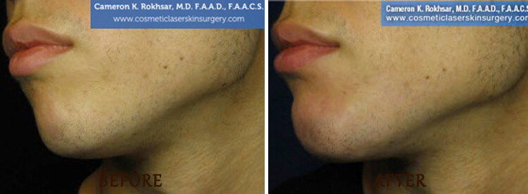 Chin Augmentation: Before and After Treatment Photo - patient 2