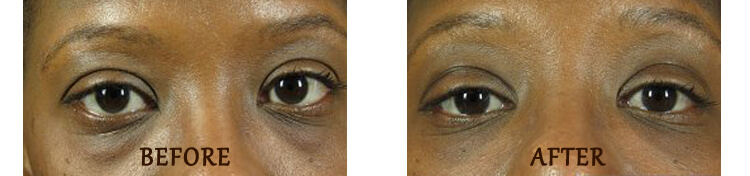 Non Surgical Eyelift: Before and After Treatment Photo - patient 1