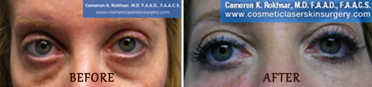 Non Surgical Eyelift: Before and After Treatment Photo - patient 6