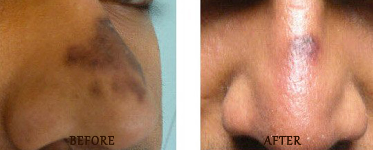 Fraxel: Before and After Treatment Photo - patient 3