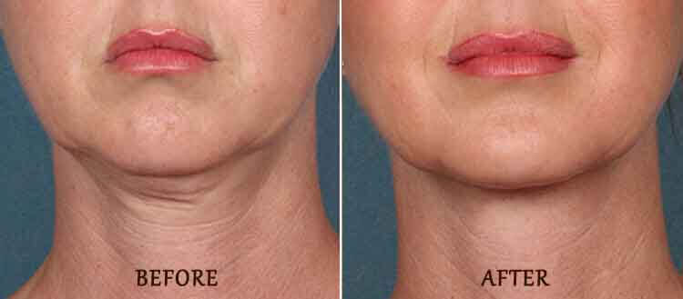 KYBELLA Results: Before and After Treatment Photo - patient 3