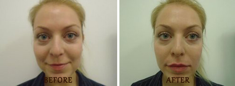Lip Enhancement: Before and After Treatment Photo - patient 1