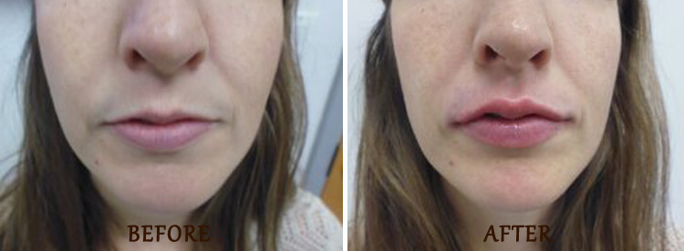 Lip Enhancement: Before and After Treatment Photo - patient 2