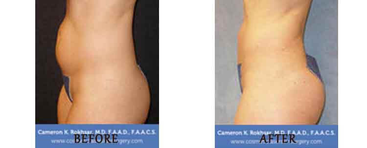 Liposuction: Before and After Treatment Photo - patient 6