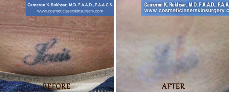 Tattoo Removal: Before and After Treatment Photo - patient 3