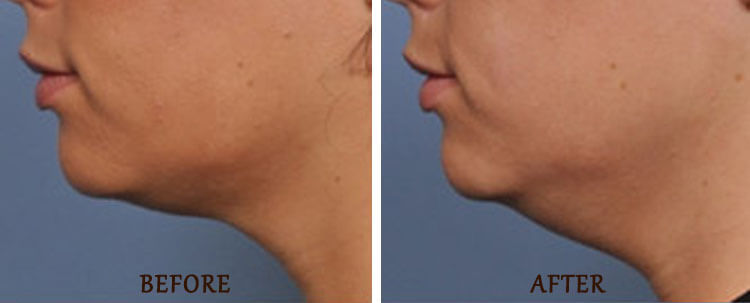Ultherapy: Before and After Treatment Photo - patient 2