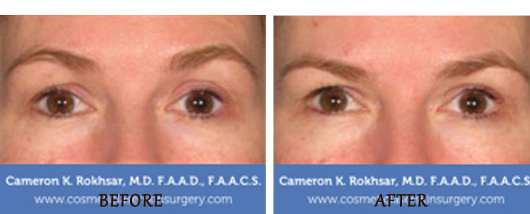 Ultherapy: Before and After Treatment Photo - patient 4