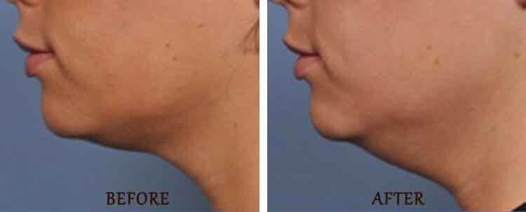 Ulthera: Before and After Treatment Photo - patient 2